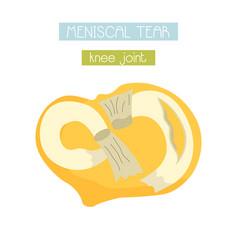 Meniscal tear knee joint vector