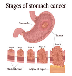 Stages of stomach cancer vector