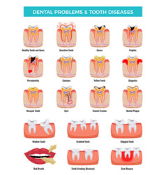 Dental problems diseases infographic set vector