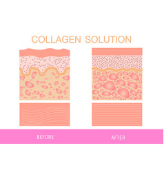 Collagen protection skin vector