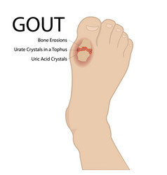 Gout arthritis human foot medical vector
