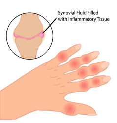 Rheumatoid arthritis on fingers medical vector