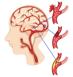 Caner in human brain vector image