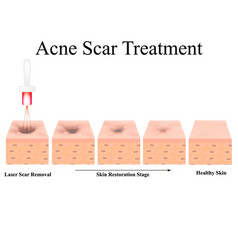 Acne scars laser scar atrophic treatment the vector