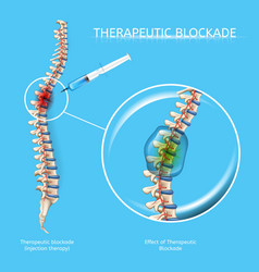 Therapeutic blockage of spine diseases vector