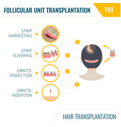 Hair transplantation by fut method in women vector