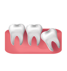 Wisdom tooth cut through 3d realistic style vector