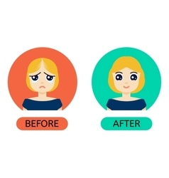 Balding woman before anf after treatment vector image