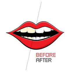 Mouth on White Background Cleaning Teeth Before vector image