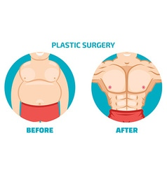 Plastic surgery man before and after vector image