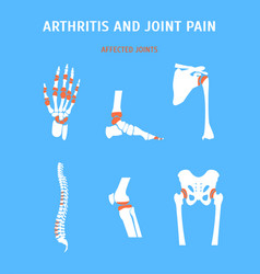 Cartoon arthritis and joint pain set vector
