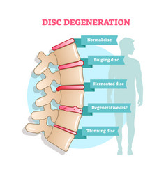 disc degeneration flat diagram vector image
