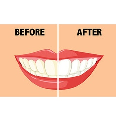 Before and after brushing teeth vector image vector image