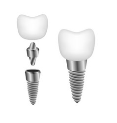 Dental implant for promotional booklets flyers vector