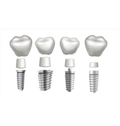 dental implant set tooth set dental vector image