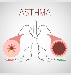 asthma icon vector image