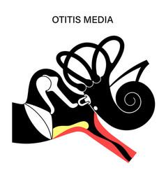 Otitis media disease vector