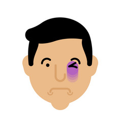 Eye bruise face bruise head black eye portrait vector