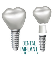 Dental implant medical poster banner vector