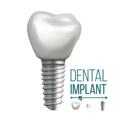 Dental implant molar human teeth dental vector
