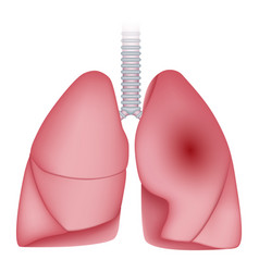 Pneumonia disease lungs icon realistic style vector