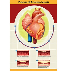 Poster of Arteriosclerosis process vector image