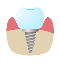 Icon implant installed in bone vector