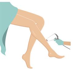 Female legs hair removal laser epilation concept vector