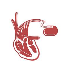 pacemaker cardio stimulator flat icon vector image
