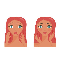 Poster acne pimples vector