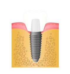 Dental implant vector