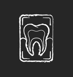 Dental x-ray chalk white icon on black background vector