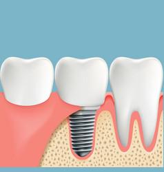 Human teeth and dental implant anatomy vector