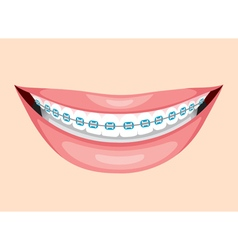 Beautiful Smile With Teeth Braces vector