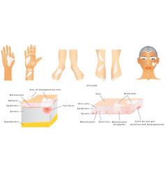 vitiligo vector image