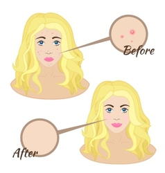Girl face with acne vector image