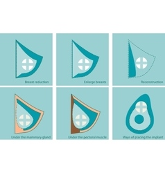 Set of icons for breast surgery vector image vector image