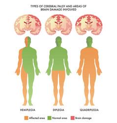 cerebral palsy brain damage vector image