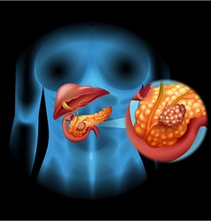Pancreas cancer diagram in detail vector
