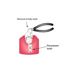 Removing baby teeth ticks Children cartoon style vector image