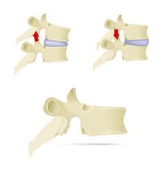 spine lumbar vertebra facet syndrome advanced vector image