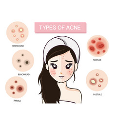 Girl type acne vector