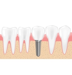 Healthy teeth and dental implant Realistic vector image
