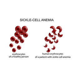 sickle cell anemia vector image