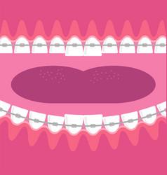 Braces teeth dental care background orthodontic vector