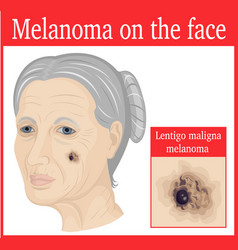 Melanoma on the cheek vector