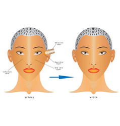 face skin care vector image vector image