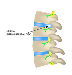 a hernia of the intervertebral disc vector image