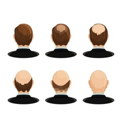 Alopecia concept Set of heads showing the vector image