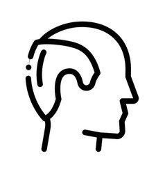 man hair loss icon outline vector image